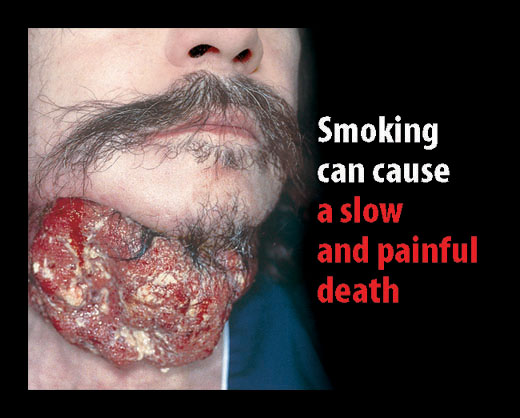 smoking a slow death 17 creative anti-smoking ads slow death smoking causes slow and painful death quit now effect of smoking on lungs.